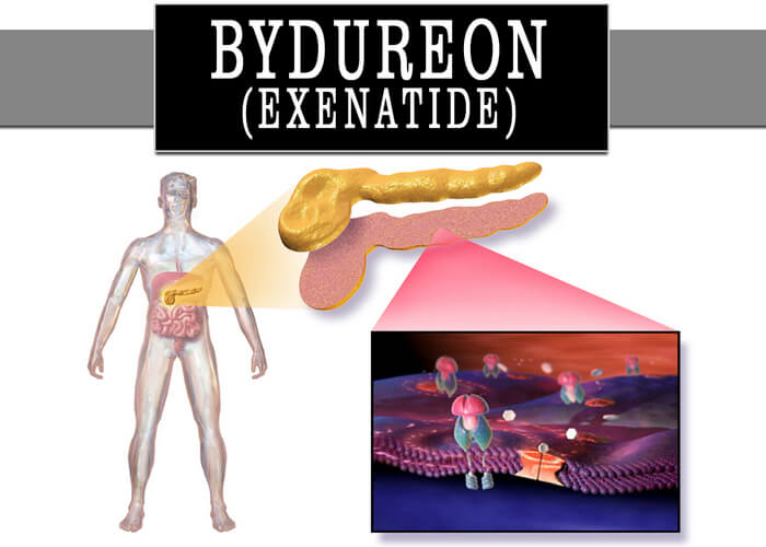 Exenatide improves glycemic control and body weight but has important side effects