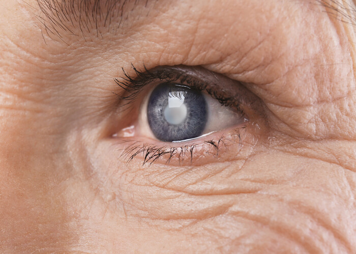 Weak evidence for radix astragali in treating diabetic retinopathy